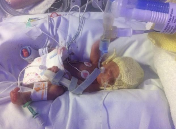 Warrington Guardian: Freya weighed just 729 grams when she was born at 28 weeks