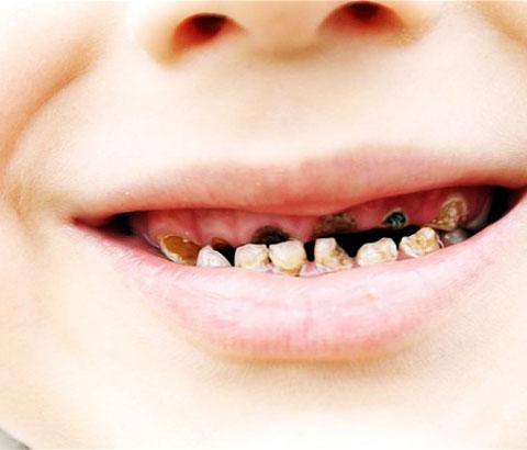 More than a quarter of kids have tooth decay