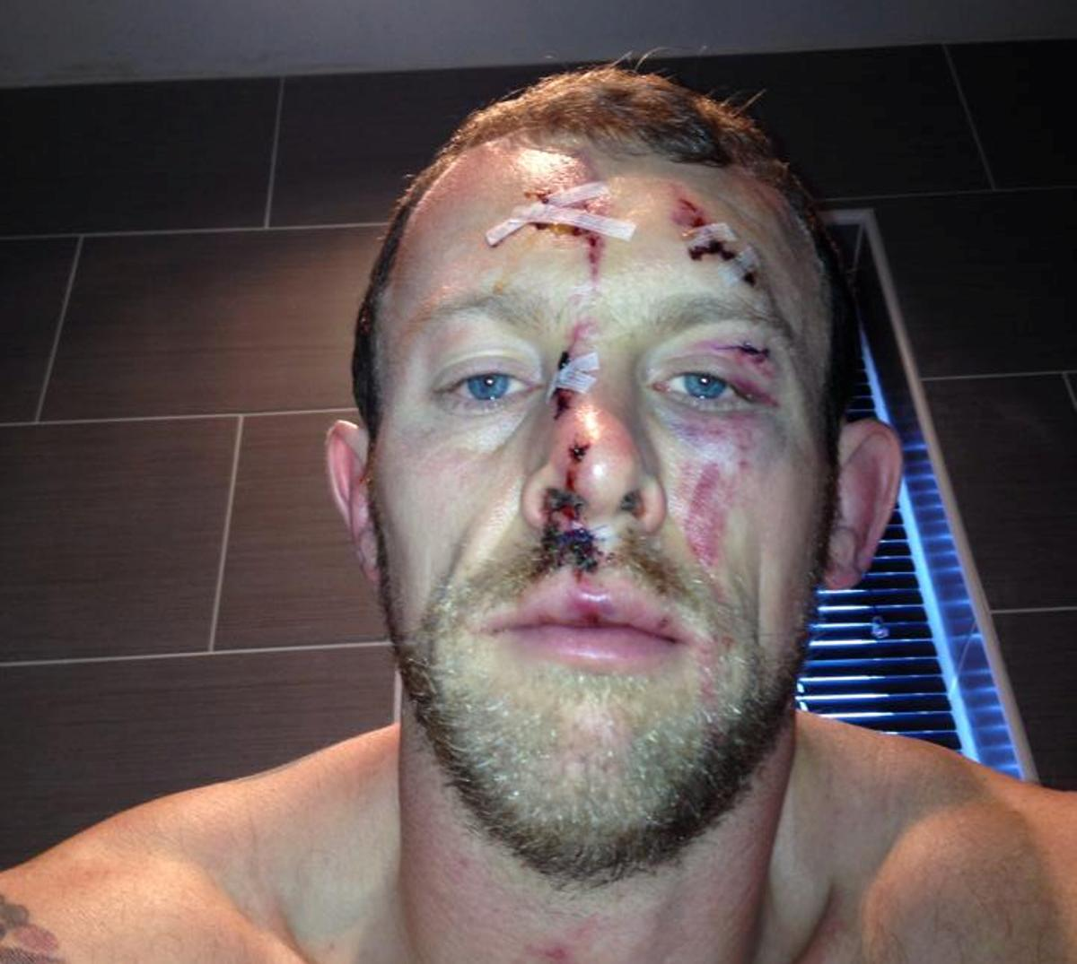 UPDATED: Micky Higham's war wounds, before and after stitches