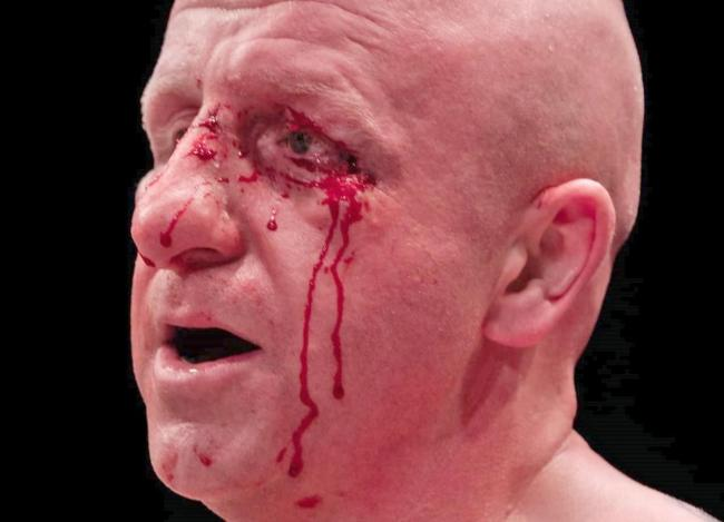 Sean McFarlane with the eye injury that led to his Prizefighter loss to Ricardo Franco in January 2019. Picture by G. Strondl